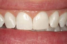 Después casos | Estética Dent